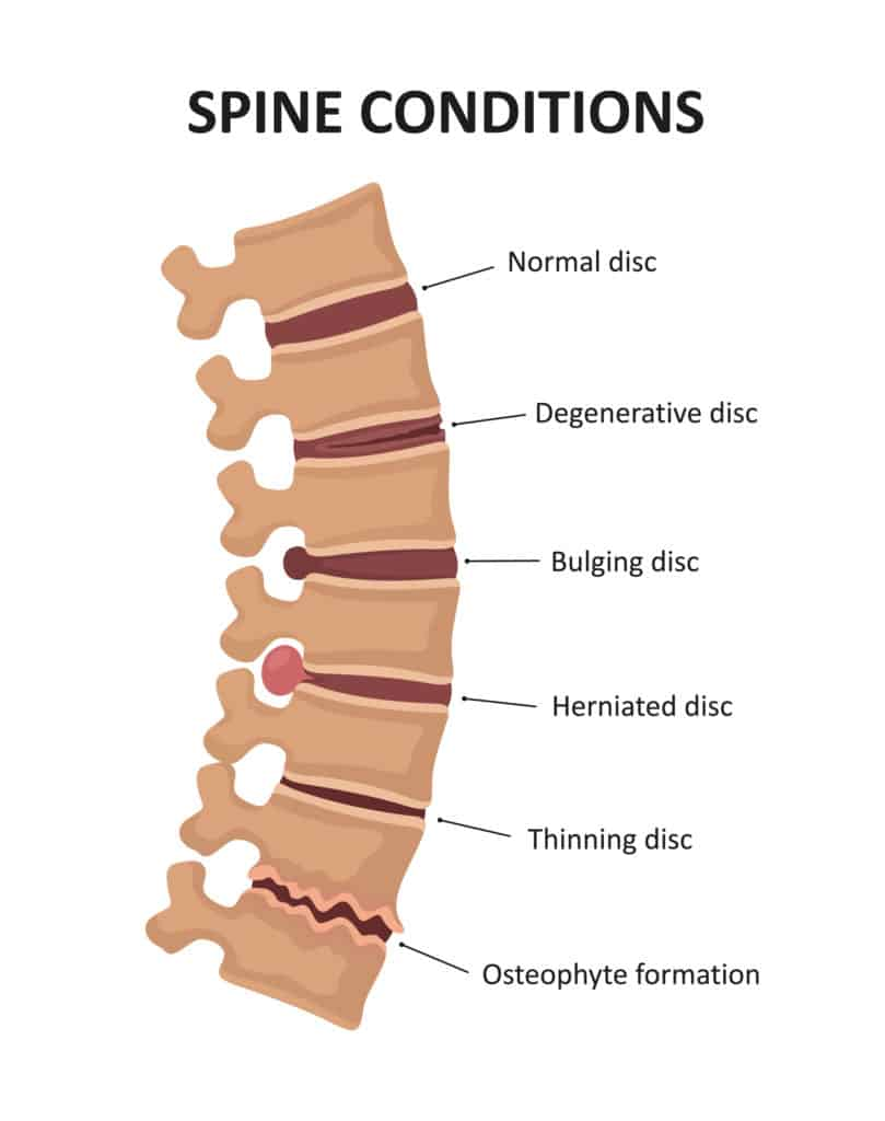 Top 10 Most Common VA Disability Claims Spine VA Claim