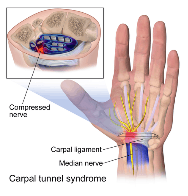 Can Carpal Tunnel Syndrome be Service-Connected for Veterans? Screen Shot 2019 11 27 at 1.02.20 PM