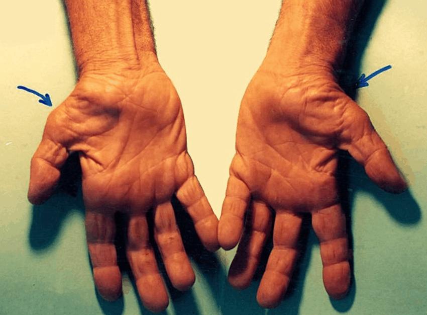 Carpal Tunnel Syndrome symptoms