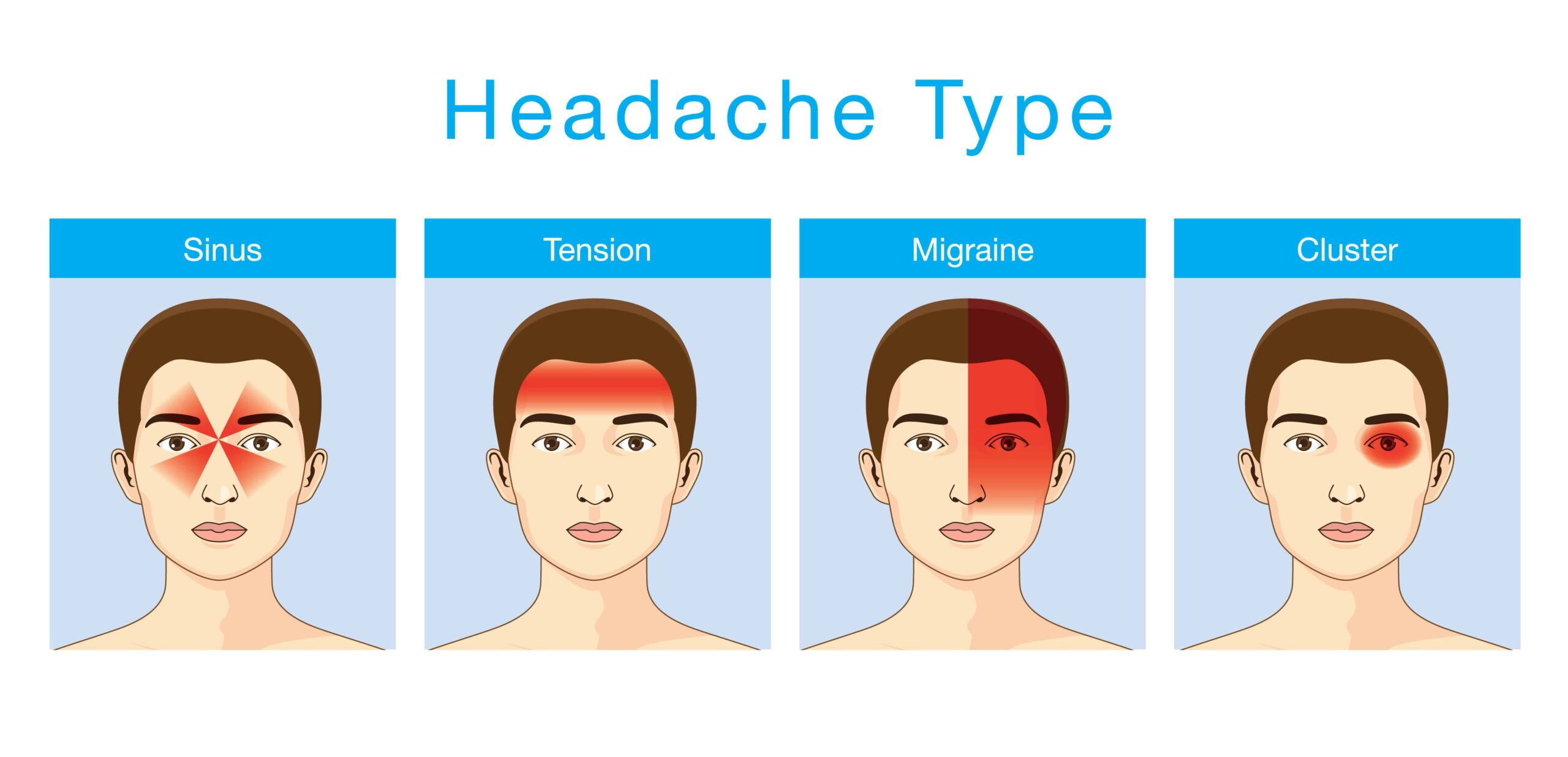 Types of Headaches for VA Disability