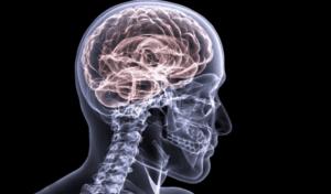 chronic organic brain injury in veterans