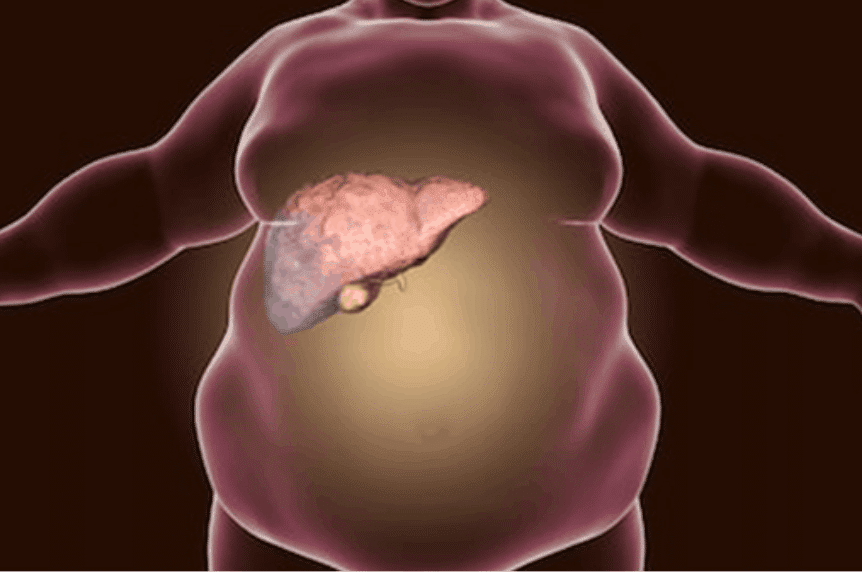 fatty liver disease in veterans