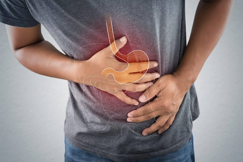 VA Disability Rating for IBS