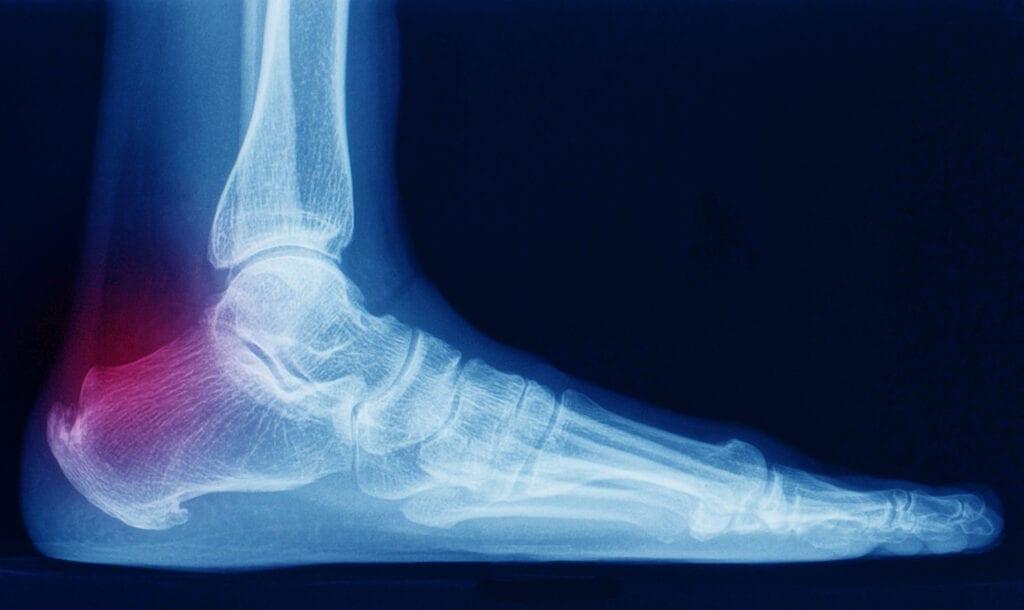 Heel Spurs Can Contribute to Plantar Fasciitis in Veterans