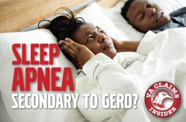 Blog Sleep Apnea Secondary to Gerd min
