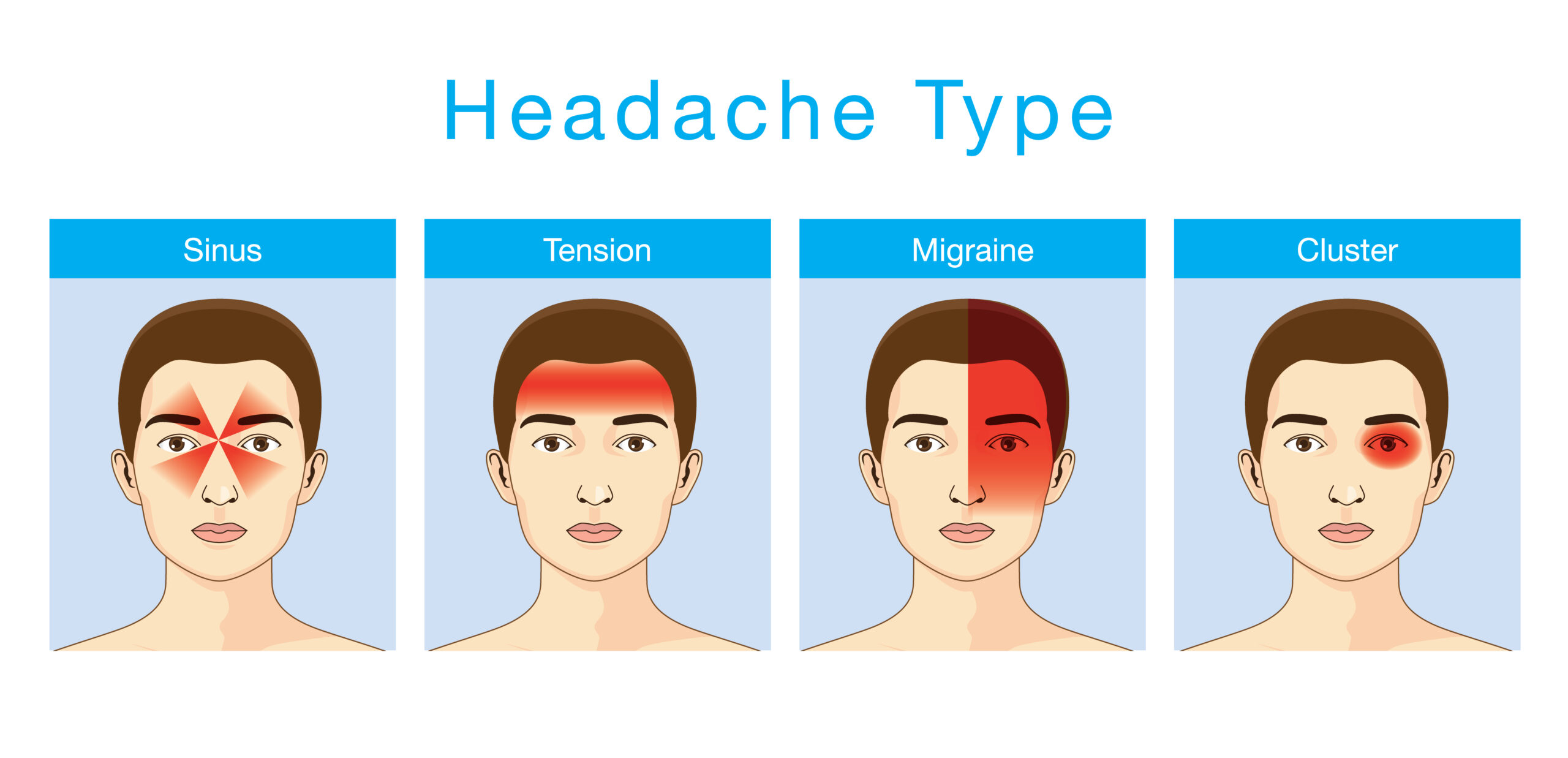 4 Main Types of Headaches