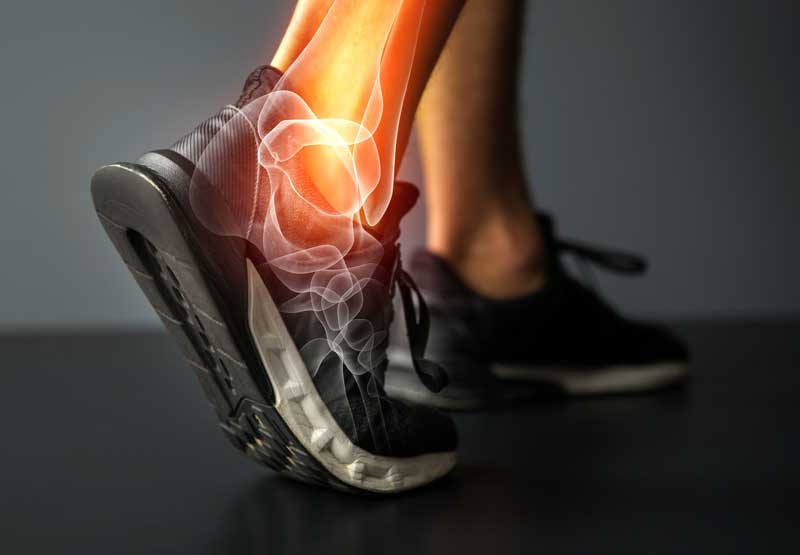 Pain from plantar fasciitis radiating through the ankle of a veteran
