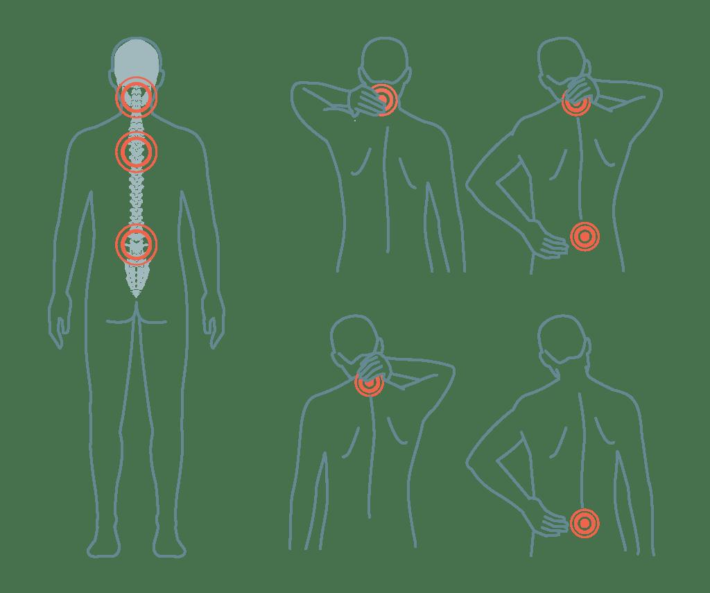 VA Claim for Back Pain