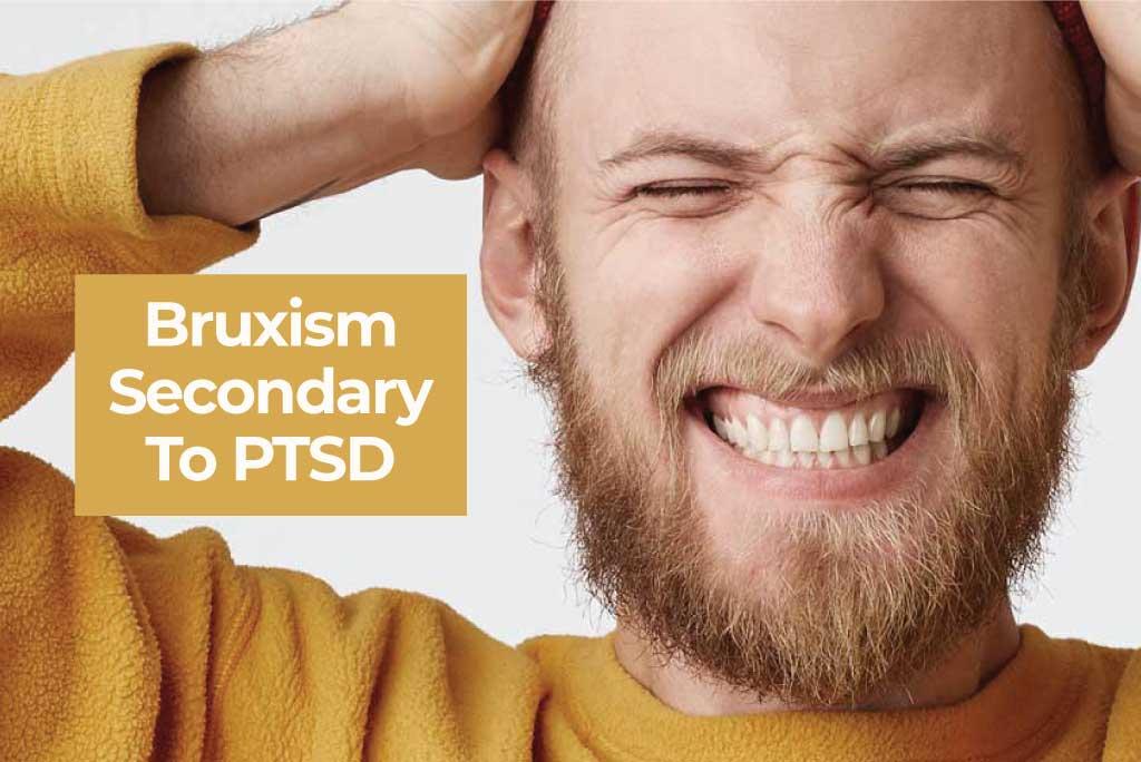 bruxism secondary to ptsd